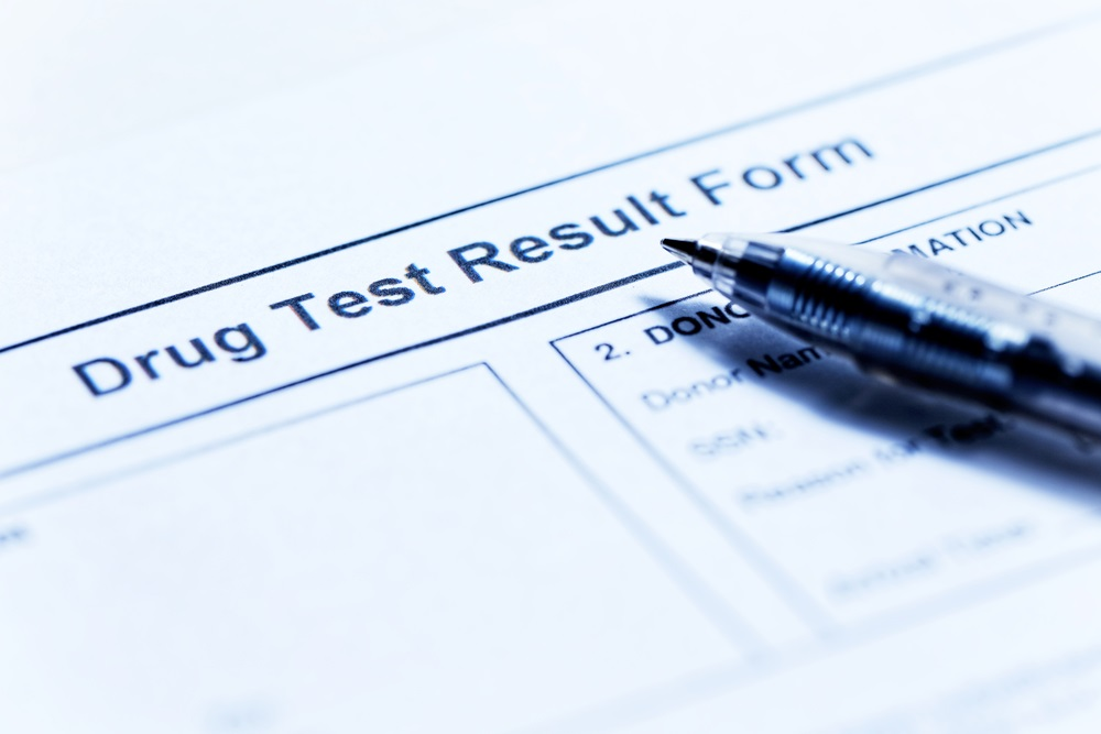 will taking delta-8 cause me to fail a drug test?